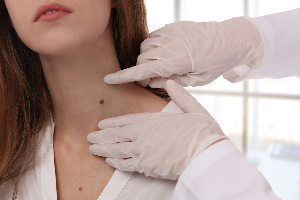 An esthetician wearing gloves examines a beauty mark on a woman's neck